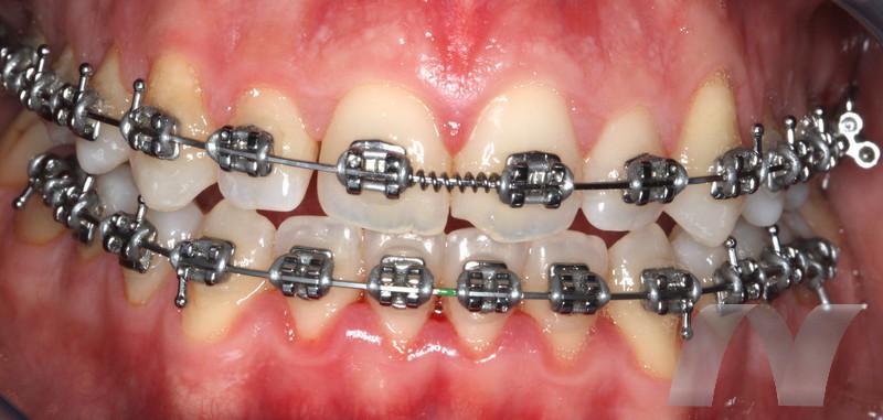 l_3-ortodoncia-