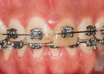 l_3-ortodoncia