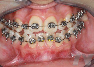 l_4-ortodoncia-alineamiento