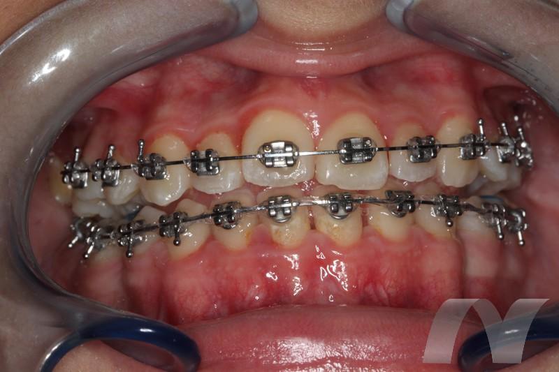 l_5-ortodoncia-fase-final