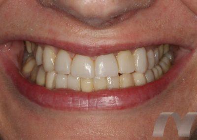 l_6-final-sonrisa