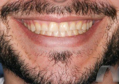 l_1-inicial-sonrisa