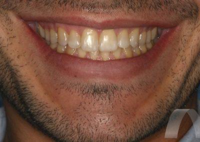 l_10-final-sonrisa