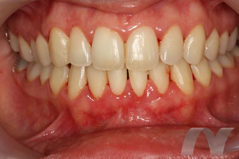 l_7--final-9-meses-boca-completa